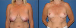 Paul E. Chasan MD - breast reduction patient